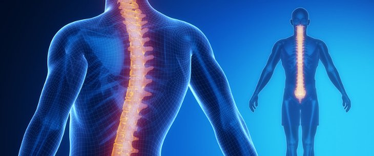 Scoliosis Spine Surgery Cost in India